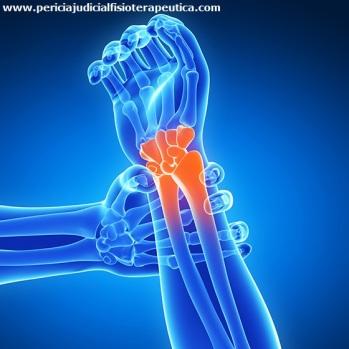 pericia_fisioterapeuta_ler